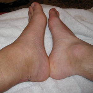 The swelling in my left ankle