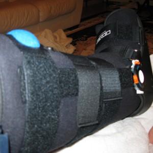 moon boot injury